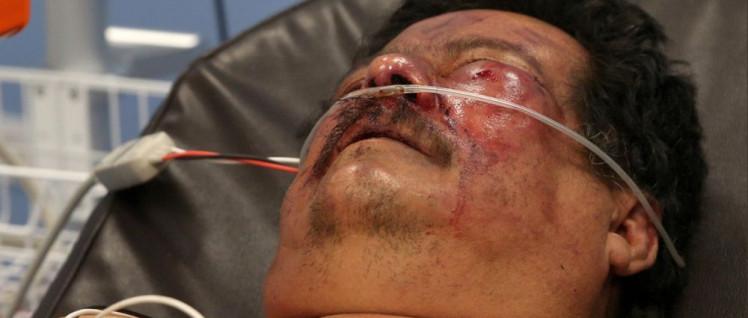 Germán Félix Davila Blanco wurde im Einkaufszentrum Metrocentro angegriffen und schwer verletzt, weil er Sandinist ist. Hetzjagden der Alianca Civica wie diese ignoriert die EU und beschließt lieber Sanktionen gegen Sandinisten. (Foto: Soy Sandinista via twitter)